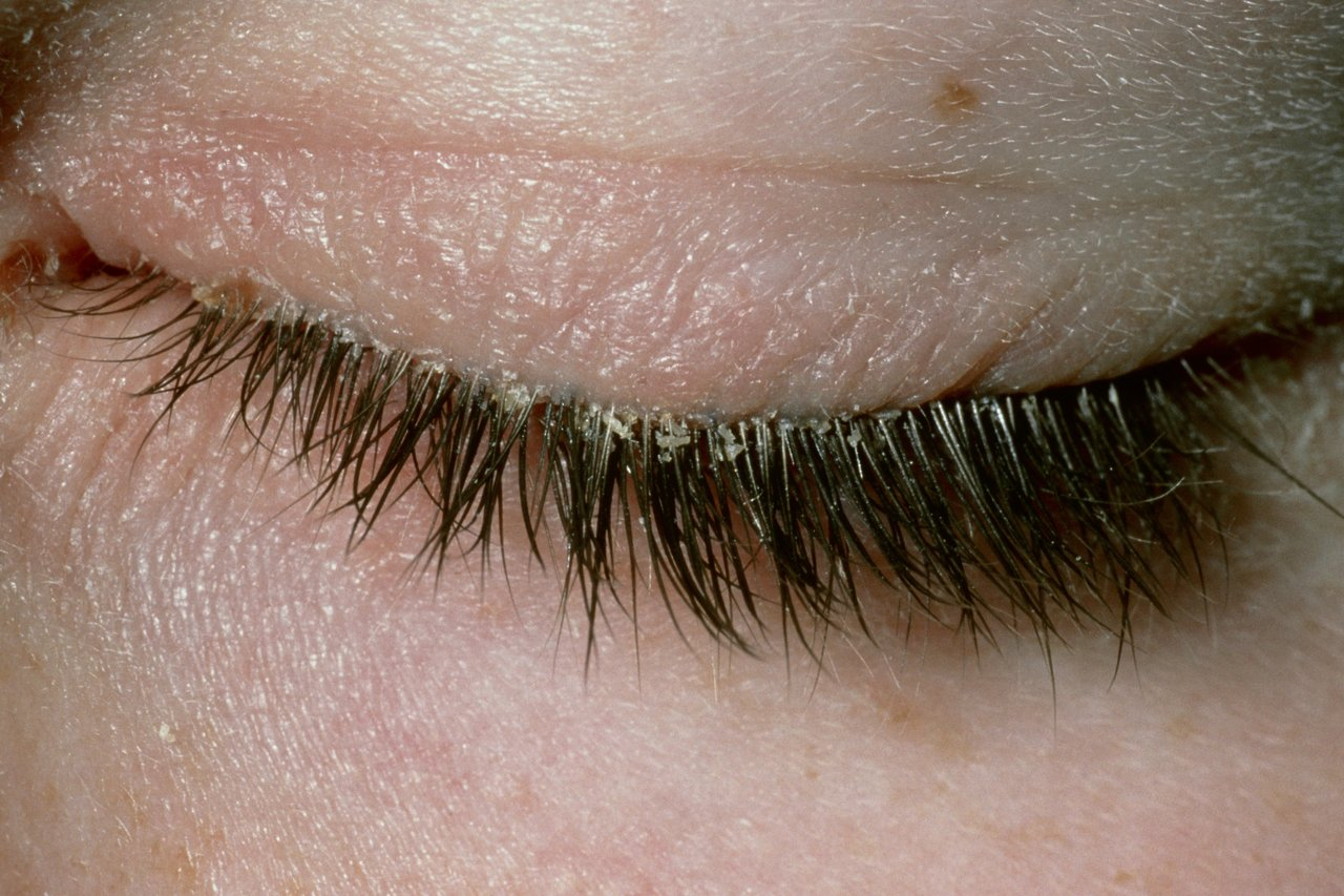 Blepharitis - Blepharitis is an inflammation of your eyelids. It can make your eyelids red and eyelashes crusty, and make your eyes feel irritated or itchy. It can also lead to burning, soreness or stinging in your eyes. In severe cases, your lashes may fall out.It is a chronic (long-term) condition. This means that once you have had it, it can come back even after it has cleared up. It normally affects both eyes. You can usually treat it by keeping your eyelids clean. You may need to do this for several months. We can spot the signs of blepharitis by looking closely at your eyelids. This is why we recommend booking in for our BLEPHEX treatment. The first treatment of its kind to really help fight blepharitis.Click Here To Learn More About Blepharitis (Link to NHS website)