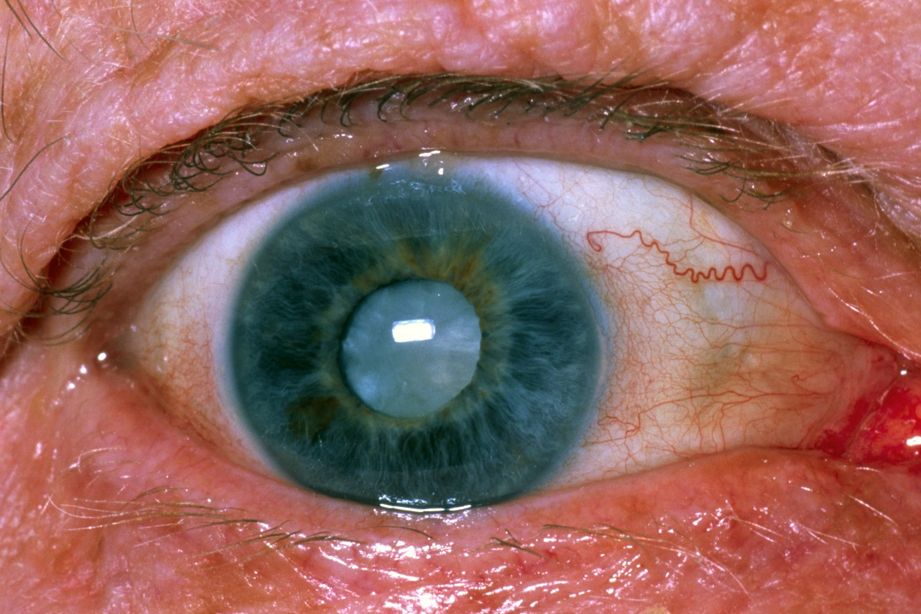 Cataracts - Cataracts are formed when the clear lens inside your eye becomes cloudy or misty. This is a gradual process that usually happens as we get older. It does not hurt. The early stages of a cataract do not necessarily affect your sight.The only proven treatment for a cataract, is surgery. If the cataract gets to the stage where it affects your sight, we will refer you to hospital to have this done. The surgery is carried out under a local anaesthetic and has a very high success rate.Click Here To Learn More About Cataracts (Link to NHS Website)