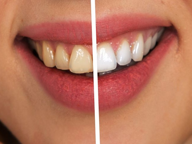 Teeth Whitening - Teeth can grow darker or discolored over time from exposure to certain foods or beverages. The good news is teeth discoloration doesn't have to be permanent. Aimee Kraft, DDS in Brooklyn Heights, New York offers GLO Teeth Whitening.