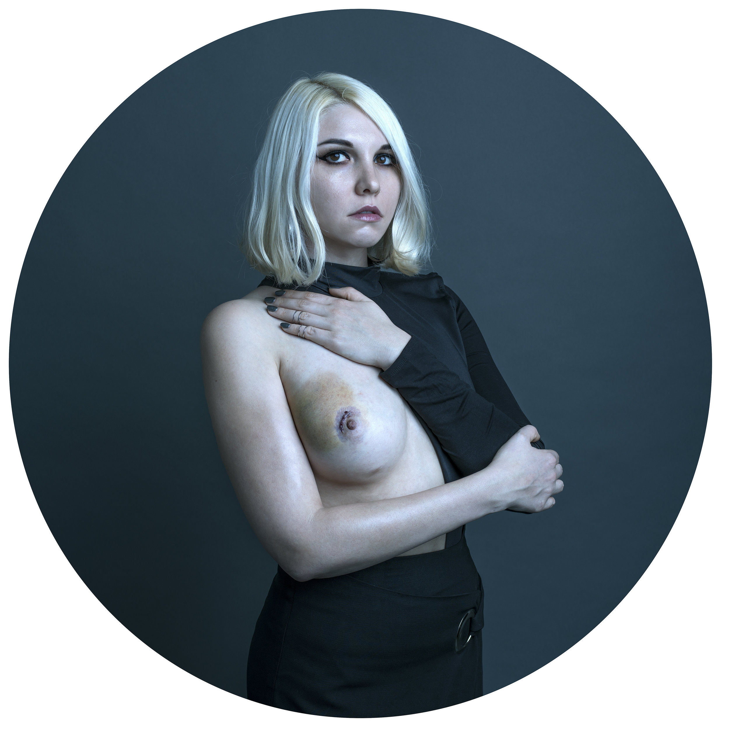 Patient , 2017 A self-portrait taken two days after Mills' second surgery to remove a benign fibroadenoma from her right breast.