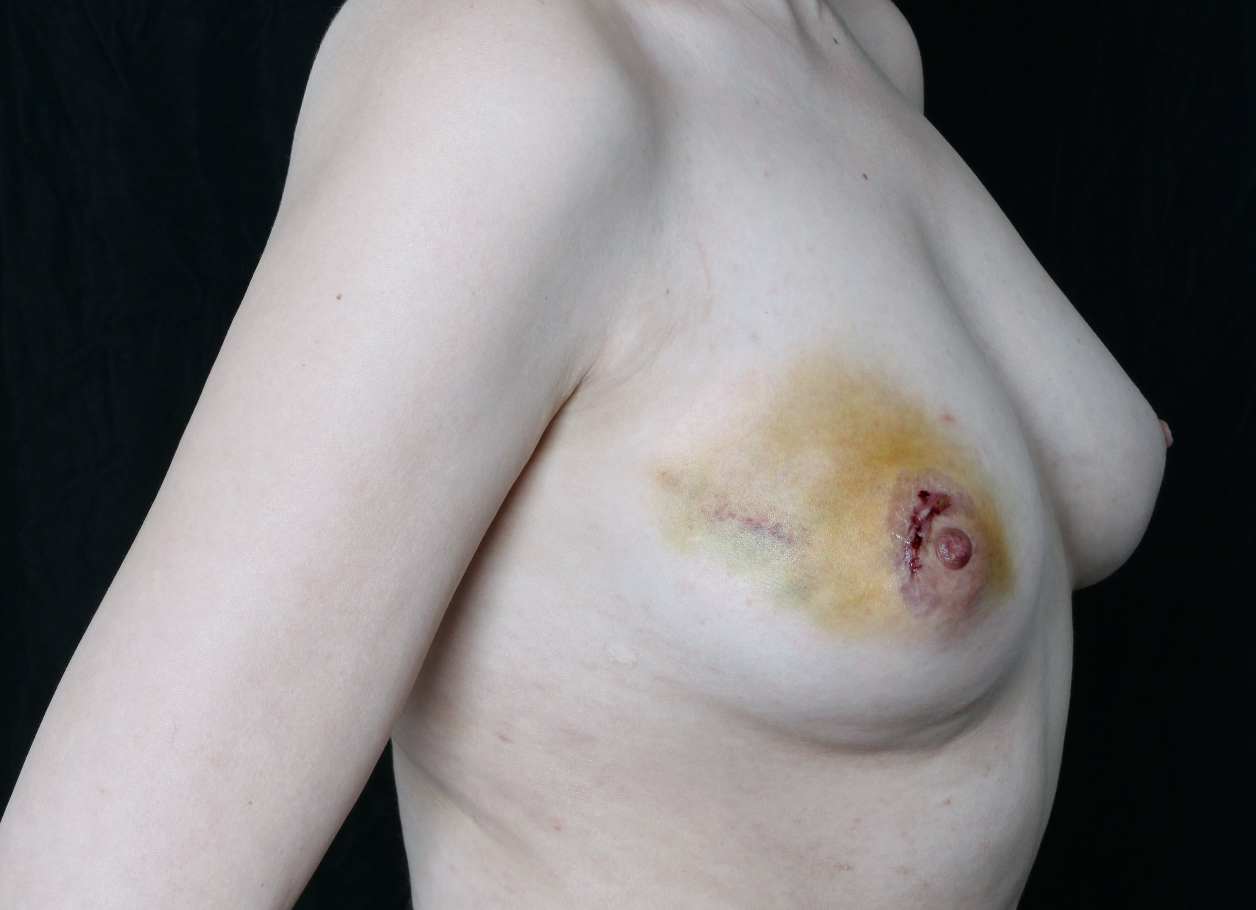 Recovery , 2017 A self-portrait taken one week after Mills' second surgery to remove a benign fibroadenoma from her right breast.