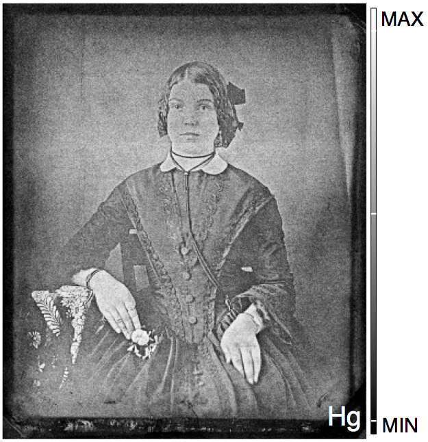 National Gallery of Canada//Western University  An image of a woman is recovered from a 19th-century daguerreotype that had tarnished almost beyond recognition. A novel process, developed at Western University and Canadian Light Source Inc, mapped its mercury content and brought the 'ghost' back to life.