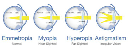 myopia hyperopia astigmatism
