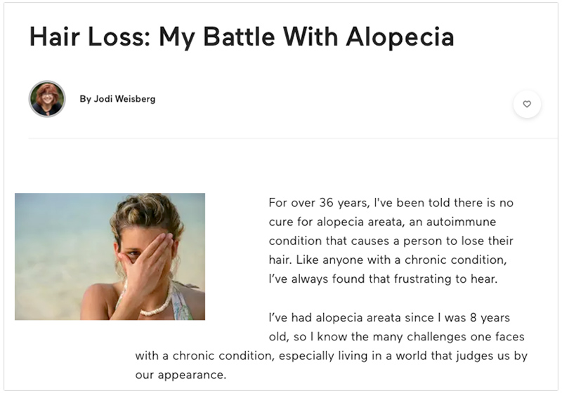 my battle with alopcia areata