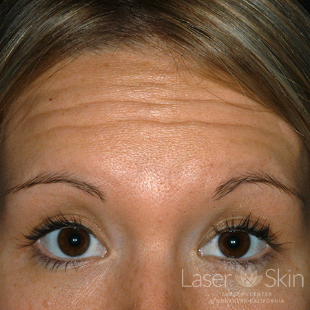 Pre Botox treatment for forehead lines
