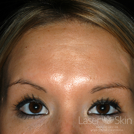 Post Botox treatment for forehead lines
