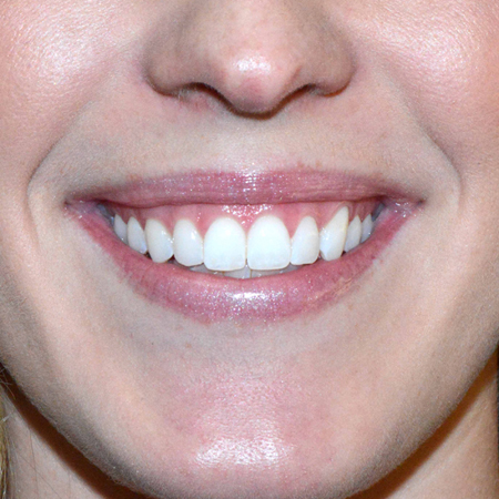 "Pre Botox treatment to improve the appearance of a ""gummy"" smile"