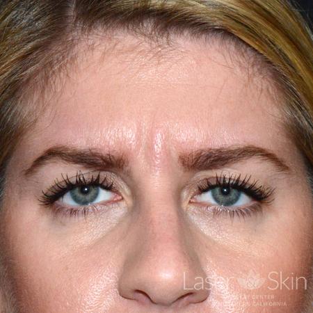 Pre Botox treatment to the glabella area