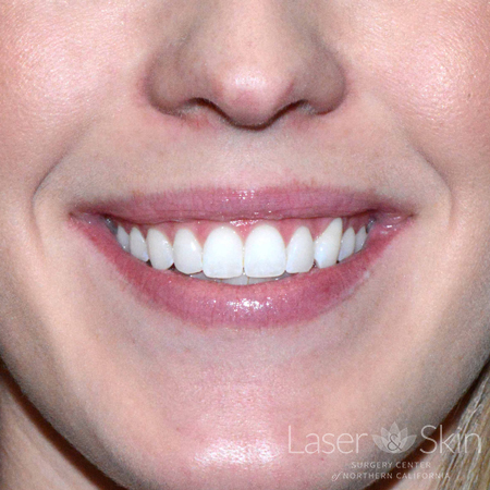 "9 days post Botox treatment to improve the appearance of a ""gummy"" smile"