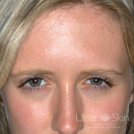 Post Botox treatment to the glabella area