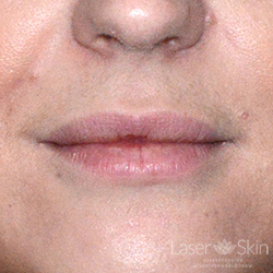 Post Juvederm Hyaluronic Acid Filler to lips