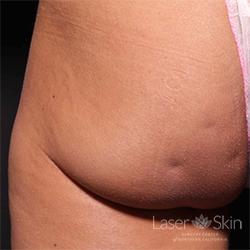 Pre Cellfina treatment for cellulite