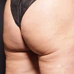 6 months post Cellfina treatment for cellulite