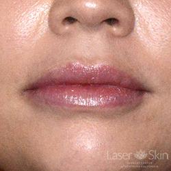 Post Juvederm Hyaluronic Acid Filler to lips