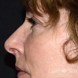 Post Juvederm Voluma Hyaluronic Acid Filler to the cheeks