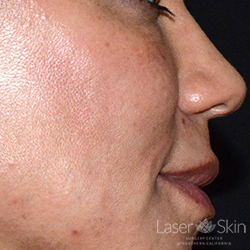 Post Juvederm Voluma Hyaluronic Acid Filler to the cheeks