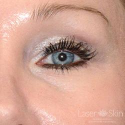 Post Juvederm Volbella Hyaluronic Acid Filler to under eye area