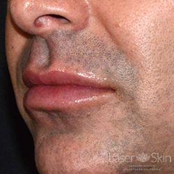 Post Juvederm Volbella Hyaluronic Acid Filler to lips