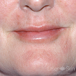 Post Restylane Hyaluronic Acid Filler to lips