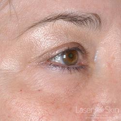 Post Restylane Hyaluronic Acid Filler to under eye area