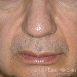 Pre Radiesse Naso Labial Folds