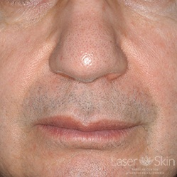 3 weeks Post Radiesse Naso Labial Folds