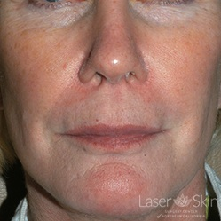 Post 3 Sculptra treatments