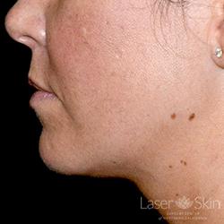 1 month post 1 Kybella treatment 1