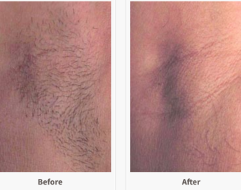Before and After Laser Hair Removal.png