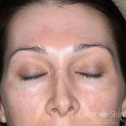 Post multiple Clear + Brilliant Permea Laser treatments