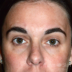 Post multiple Clear + Brilliant Permea Laser treatments