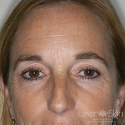 Pre CO2 Laser Resurfacing