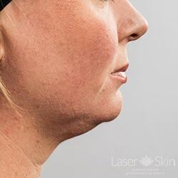 Pre CoolSculpting Coolmini treatments to the submental (double chin) area