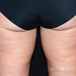 Pre CoolSculpting treatment to the inner thighs
