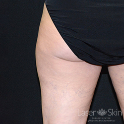 6 months post CoolSculpting CoolSmooth treatment to the outer thigh