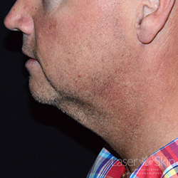 Post 2 CoolSculpting Coolmini treatments to the submental (double chin) area