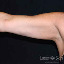 3 months post 1 CoolSculpting treatment for upper arms