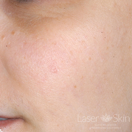 Post LP Alex laser to Seborrheic Keratoses