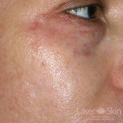 Post multiple laser treatments to Port Wine Stain Birthmark