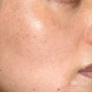 Post Excel V Laser to Brown Spots