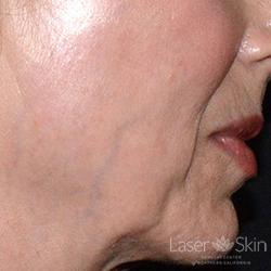 Pre Excel V laser to blue veins