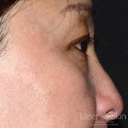 Post QS Alex Laser to Brown Spots