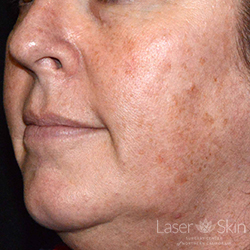 Pre Fraxel Dual Laser and QS Alex Laser treatments