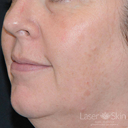 3 months post Fraxel Dual Laser and QS Alex Laser treatments