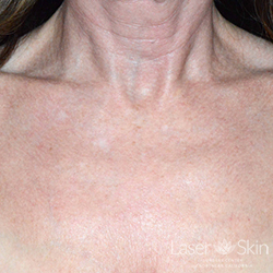 4 weeks post Fraxel Dual Laser to the chest area