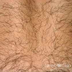 Pre Laser Hair Removal treatments to the back