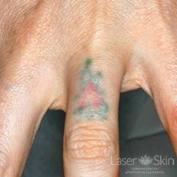 Pre Laser Tattoo Removal