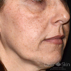 Pre Picosecond Laser Toning treatment