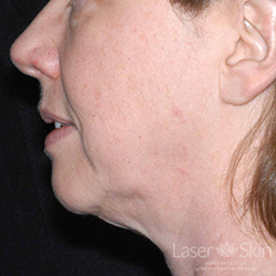 Pre Ultherapy treatment