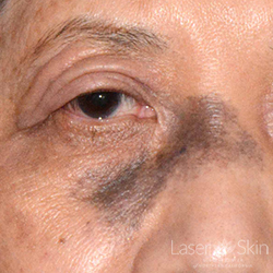 Pre Laser treatments to Nevus of Ota